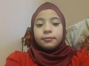 Фото: Aref Alshteiwi На фото: Девочку дразнили и называли уродливой